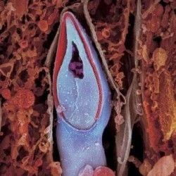 După o săptămână embrionul se mișcă prin trompa uterină spre uter